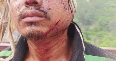 पौड़ी गढ़वाल: कांडी गांव में गुलदार ने युवक पर किया हमला, घायल